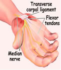 Hand Reflexology and Carpal Tunnel Syndrome